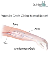 Vascular Grafts Global Market Report 2020-30: COVID-19 Growth And Change
