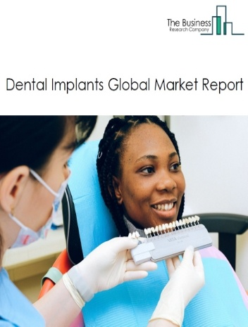 Dental Implants Global Market Report 2021: COVID 19 Growth And Change to 2030